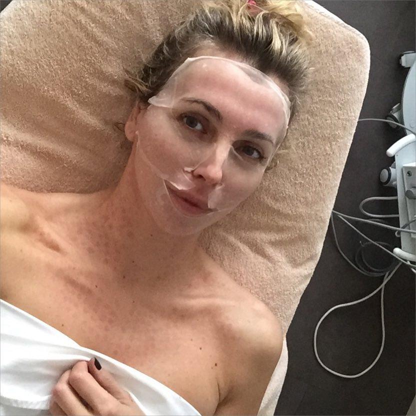 Светлана Бондарчук: очень крутая процедура     #красотатребуетжертв #несекрет #burobeauty     #biologiquerecherche